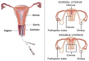 Treatment-Uterus