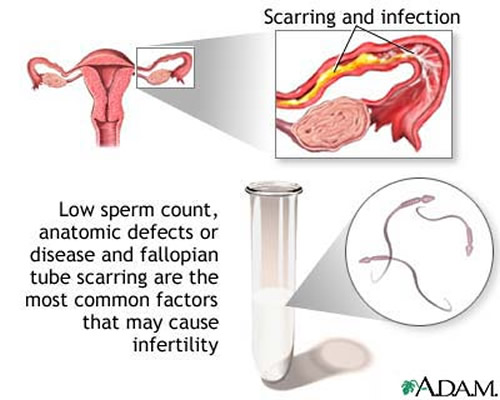 infertility-scarring-and-infection