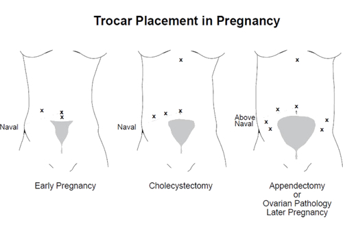 Trocar_placement_in_pregnancy
