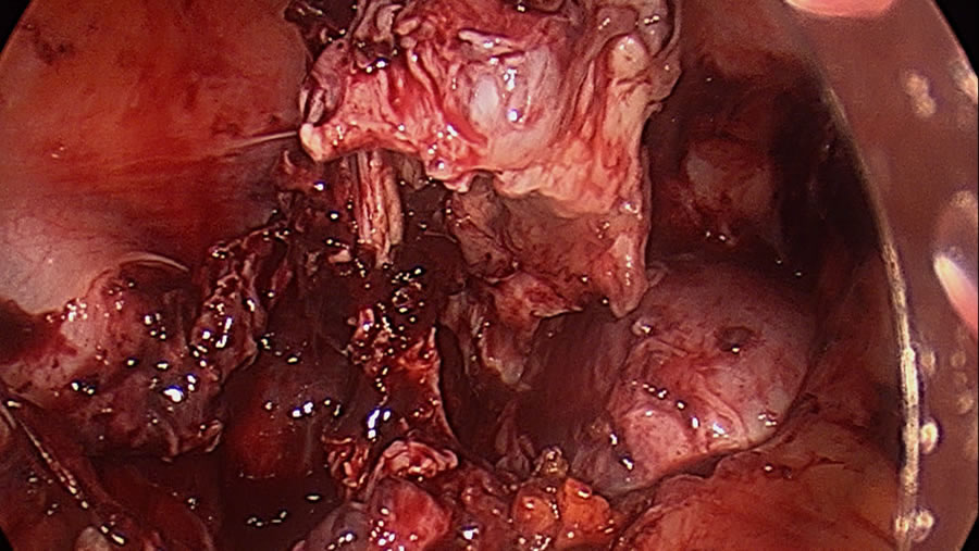 Left ovarian endometrioma has been resected and is being elevated off the bowel
