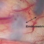 Update In Innovation: Surgical Management Of Endometriosis