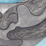 Cesarean Section Scar, Niche, Isthomocele, Uteroperitonial Fistula